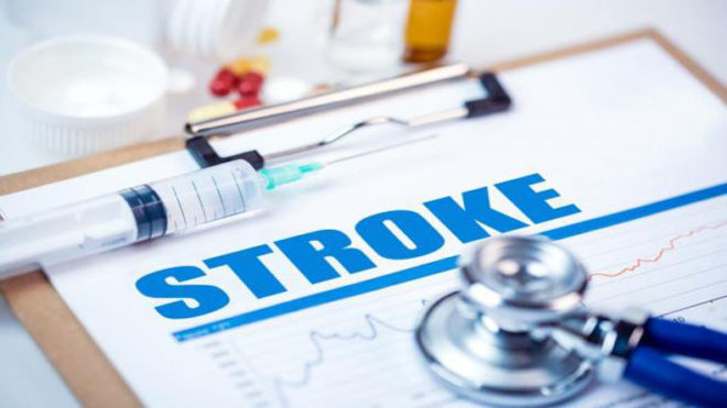 People suffering mini-strokes more likely to suffer major strokes