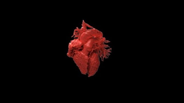 3-D printed heart models enable surgeons find the source of human heartbeat