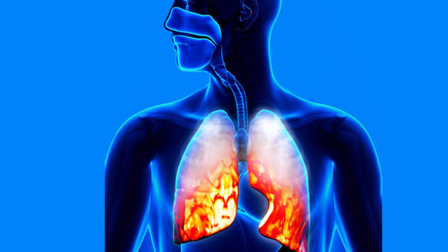 Pneumonia in early life may increase asthma risk