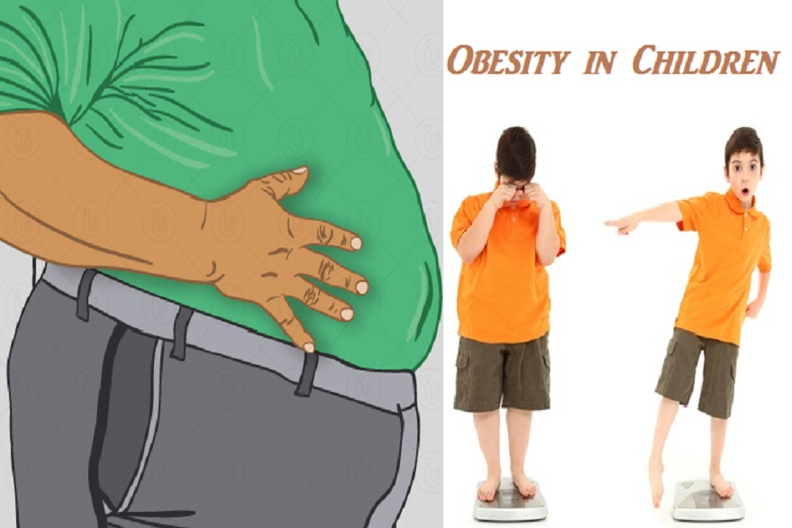 Top reasons children become obese